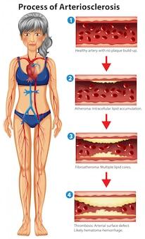 Prozess der medizinischen illustration der arteriosklerose