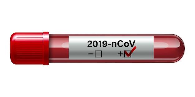 Reagenzglas mit blutprobe für covid-19, coronavirus-test.