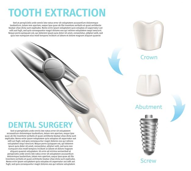Realistische illustration infografik zahnarztpraxis