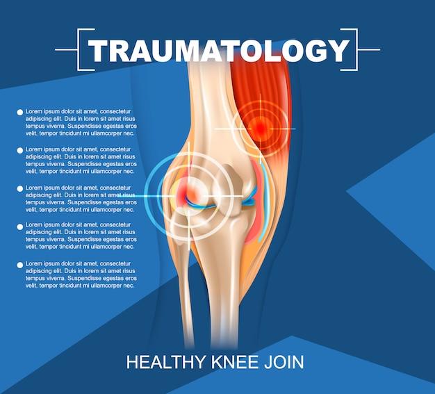 Realistische illustrations-traumatologie-medizin in 3d