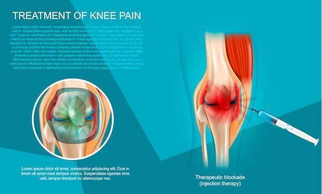 Realistische illustrationsbehandlung von knieschmerzen