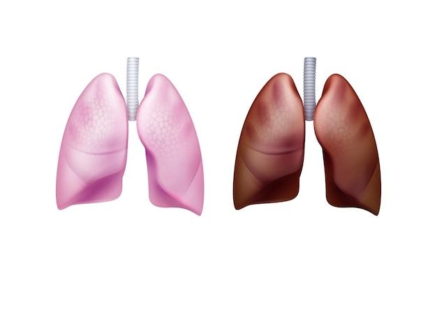 Realistische rosa gesunde und braune erkrankte lungen mit luftröhre schließen vorderansicht lokalisiert auf weißem hintergrund
