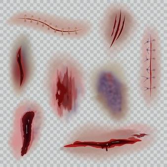 Realistische wunden. narben, chirurgische nähte und prellungen, hautschnitt. blutige wunde halloween oder medizinische nahaufnahme texturen vektor isoliert auf transparentem hintergrund