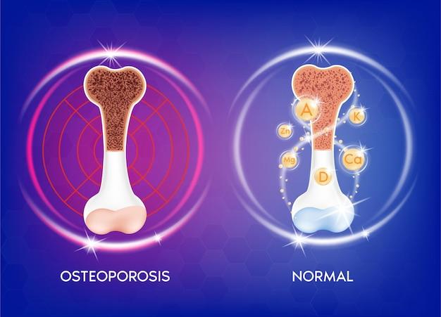 Realistischer knochen medizinische illustration gesunder knochen und ungesunde knochenosteoporose. medizin- oder gesundheitskonzept. knochenschutz.