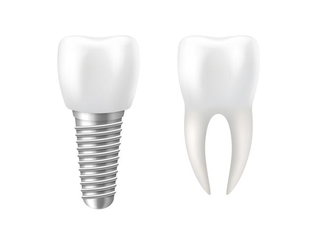 Realistisches zahn- und zahnimplantat für die stomatologie