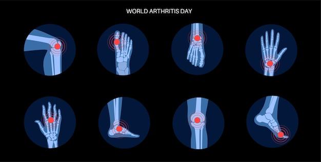 Rheumatoide arthritis, schmerzen, knochenkrankheitskonzept.