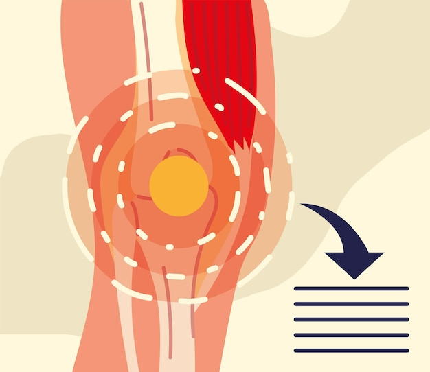 Rheumatologie knie abbildung