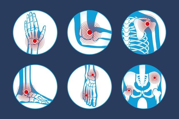 Rheumatologie-zusammensetzungen eingestellt