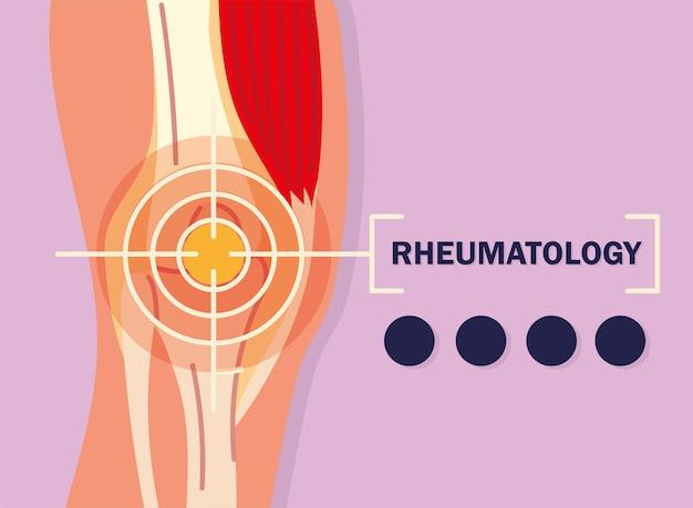 Rheumatologisches design von knieschmerzen