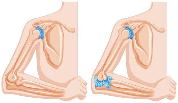 Röntgenaufnahme des ellenbogengelenks