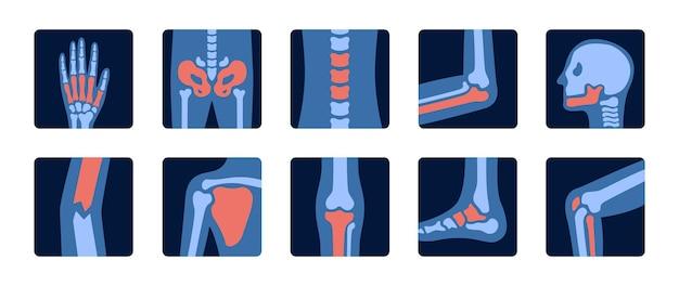Röntgenaufnahmen des menschlichen skeletts und der gelenkanatomie mit schmerzteilen röntgenuntersuchung von knochen und schädel