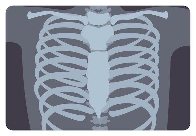 Röntgenbild, röntgenbild oder röntgenbild des aus wirbelsäule und brustbein gebildeten rippen- oder brustkorbs. medizinische radiographie und menschliches skelettsystem. flache monochrome vektor-illustration.