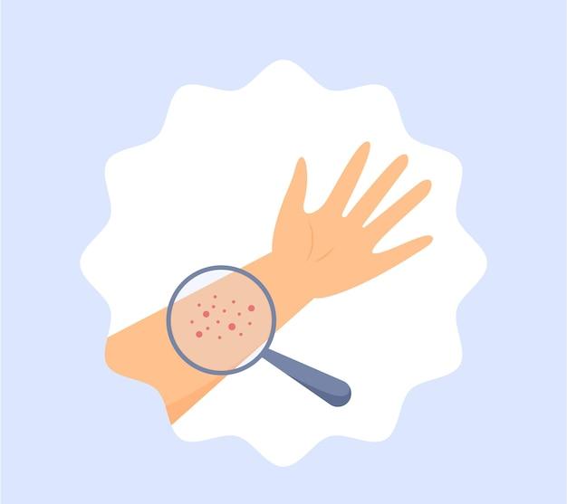 Roter hautausschlag an einer hand allergie und virushauterkrankungen