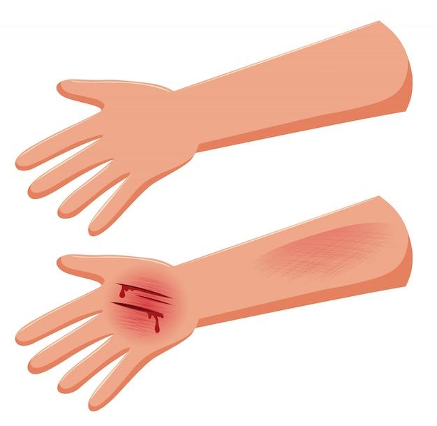 Satz der verletzten hand