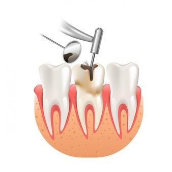 Saubere karies durch zahn-zahnbohrer