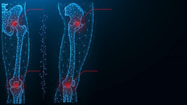 Schmerz in der blauen polygonalen vektorillustration des hüft- und kniegelenks