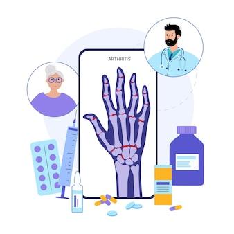 Schmerzen und entzündungen in der hand auf dem röntgenbild. chatten sie online mit dem arzt
