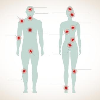 Schmerzinfografik mit menschlichen silhouetten von mann und frau