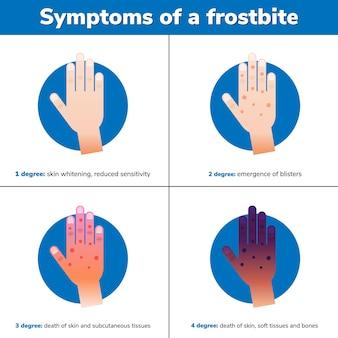 Simptoms einer erfrierung. 4 medizinische stadien. infografik. vektor-illustration.