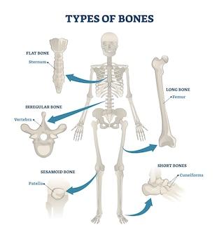 Skelett mit knochen
