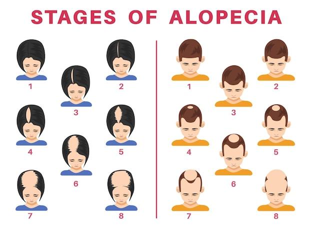Stadien der alopezie bei männern und frauen illustrationen set