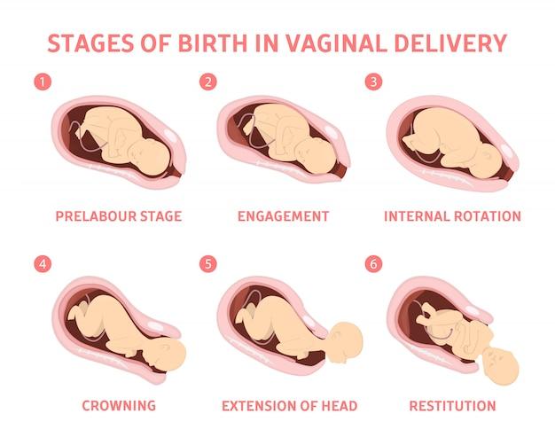 Stadien der geburt eines kindes in der vaginalen entbindung.