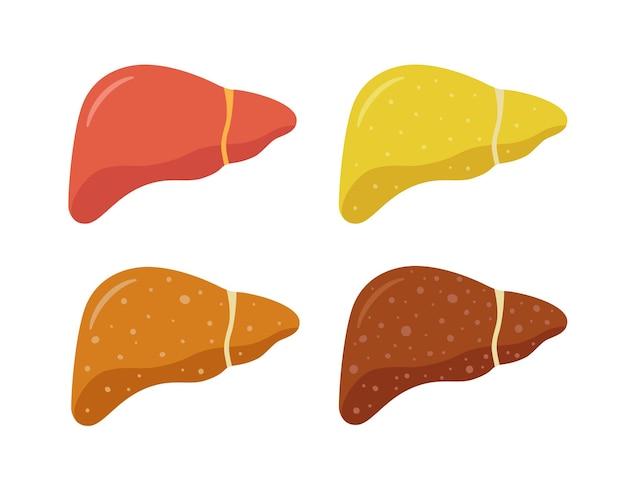 Stadien der nichtalkoholischen leberschädigung. gesund, fettig, fibrose, zirrhose. leber erkrankung. isolierte vektorillustration im flachen stil auf weißem hintergrund