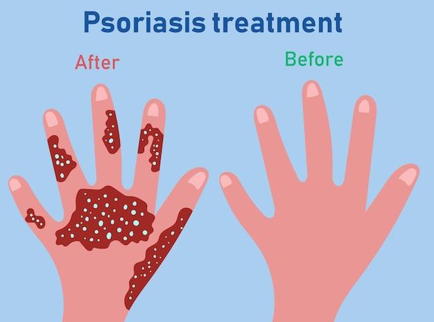 Stadien der psoriasis-bildung