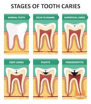 Stadien der zahnkaries