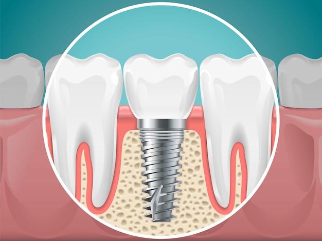 Stomatologie-abbildungen. zahnimplantate und gesunde zähne. vektorgesundheitszahn- und -implantatstomatologie, zahnheilkundeinstallation und befestigung