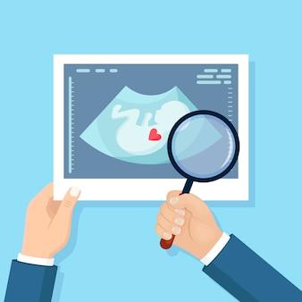 Ultraschalluntersuchung des babys und der lupen in der hand. schuss des scannens der schwangeren frau