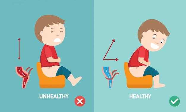 Ungesunde versus gesunde positionen zu defäkieren