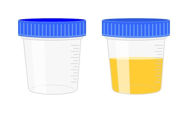 Urinanalyse urinprobe leere und volle plastikbehälter