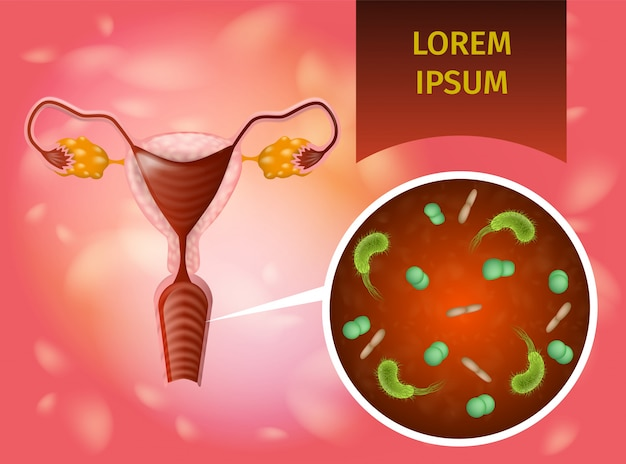 Vaginal infection realistic vector konzept