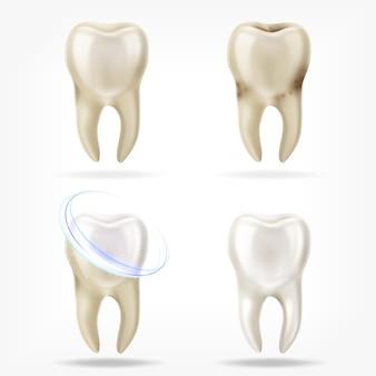 Vektorsatz des realistischen sauberen und schmutzigen zahns 3d, der zahnprozess löscht.