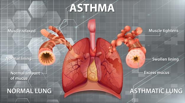 Vergleich von gesunder lunge und asthmatischer lunge