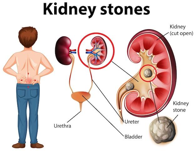 Vergleich von gesunder niere und niere mit steinen