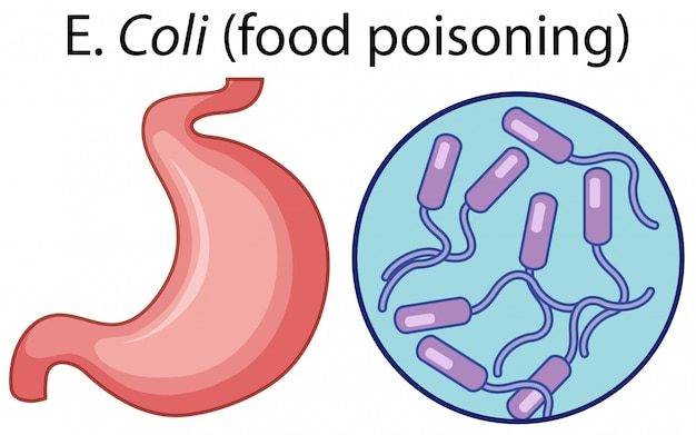 Vergrößerte zellen der lebensmittelvergiftung