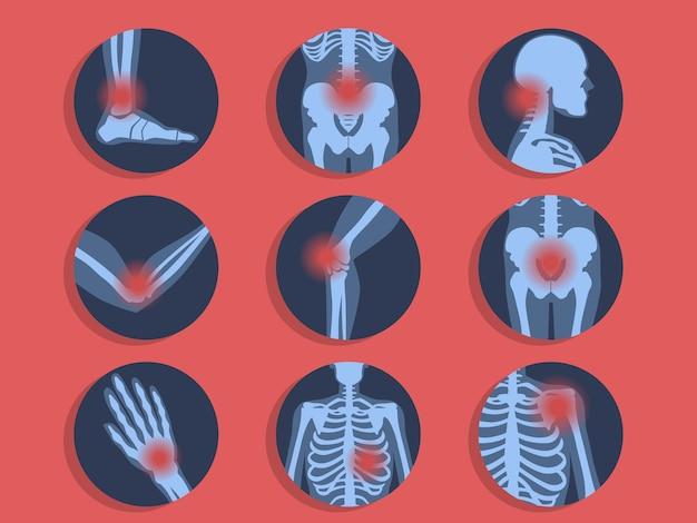 Verschiedene arten von schmerzen. kopfschmerzen, bauchschmerzen