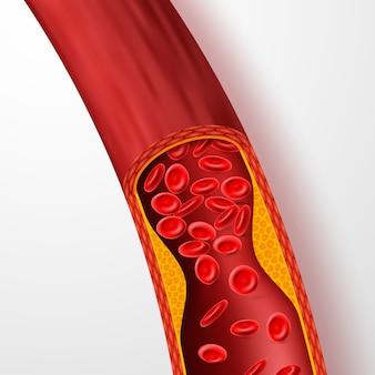 Verstopftes blutgefäß, arterie mit cholesterinthrombus. ader 3d mit klumpenvektorillustration
