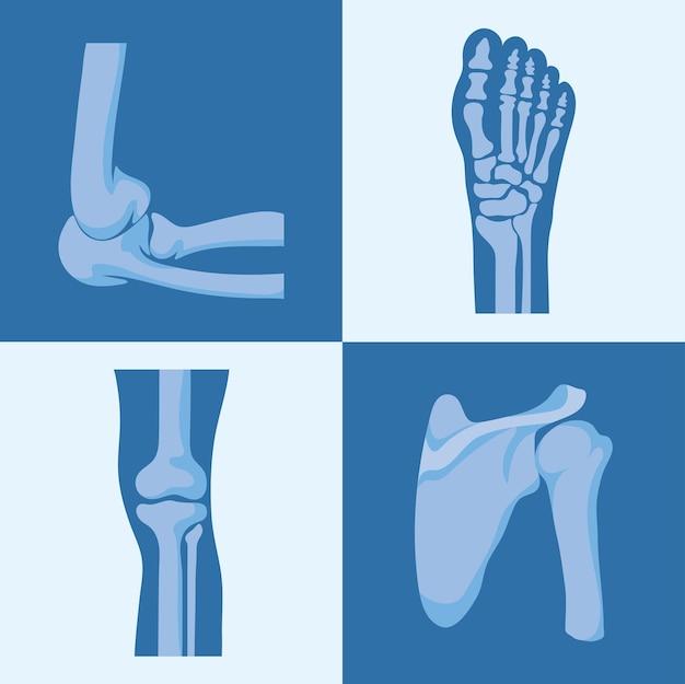 Vier rheumatologische gelenke