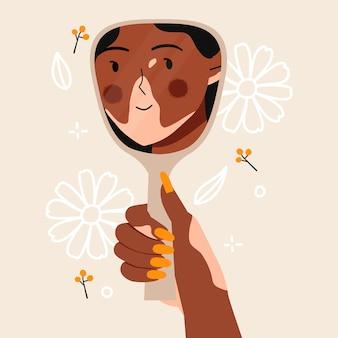 Vitiligo frau sieht sich im spiegel mit schönen blumen lächelnd.
