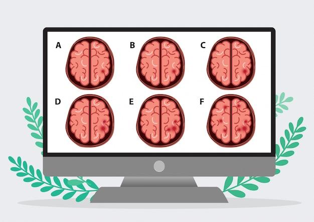 Wissenschaftliche medizinische illustration des anschlags des menschlichen gehirns