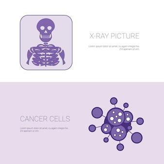 X ray-bild und krebszellen-konzept-schablonen-netz-fahne mit kopien-raum