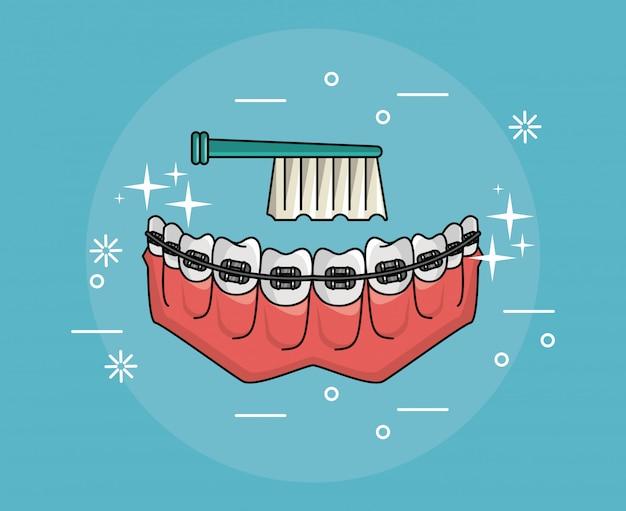 Zähne mit zahnmedizinischen zahnspangen