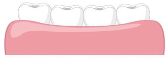 Zahn in einem Gummi