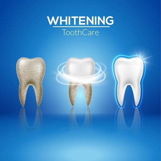Zahn sauber 3d gesundheit. dental realistische dirty whitening. zahnarztzahnhygiene isolierte medizinschablone