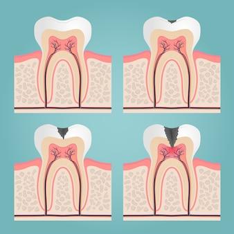 Zahnanatomie und beschädigung, geschnittene zähne in der zahnfleischvektorillustration