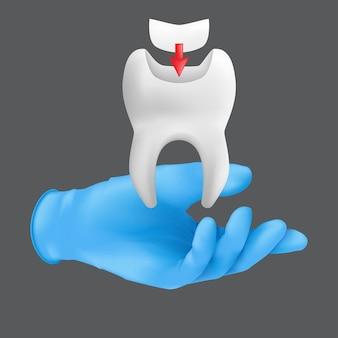 Zahnarzthand, die blauen chirurgischen schutzhandschuh hält, der ein keramikmodell des zahns hält. realistische illustration des zahnfüllungskonzepts lokalisiert auf einem grauen hintergrund