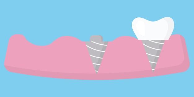 Zahnersatzkonzept künstlicher zahn
